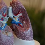 lung cancer and LEMS